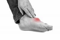 What Part of the Foot Does Gout Affect?