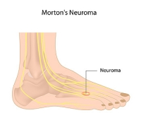 Where is the Pain From Morton's Neuroma Located?