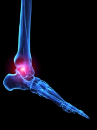 Different Types of Arthritis in the Feet