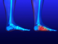 Possible Causes of Flat Feet